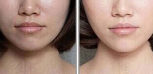 黑脸娃娃改善肌肤来带的瑕疵