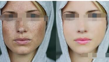 为什么激光祛斑不留疤痕