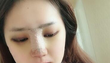 假体隆鼻术后的效果不会出现显假的情况