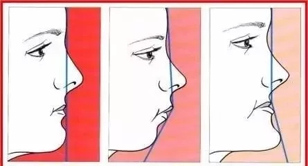 亮点颇多 玻尿酸让你从侧颜塌变侧颜杀的女神
