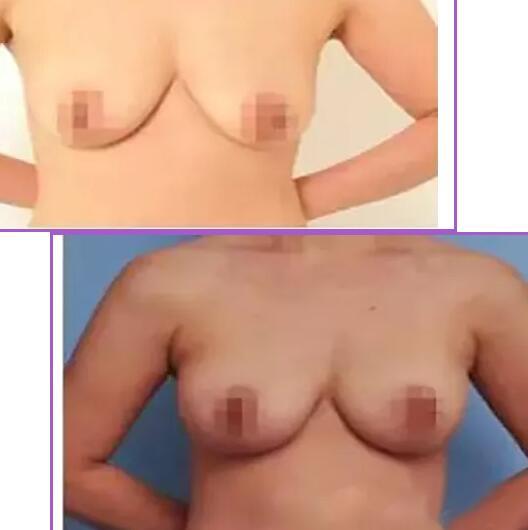 乳房下垂矫正使女性的胸部重新挺立