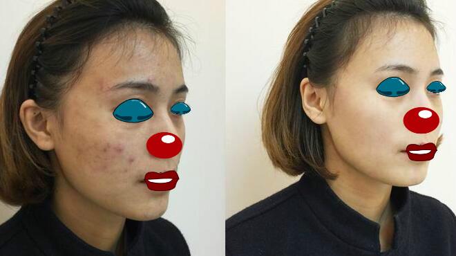 激光嫩肤美白解决肌肤瑕疵问题