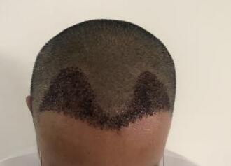 一名制图师的植发心得,让我重新拥有了头发