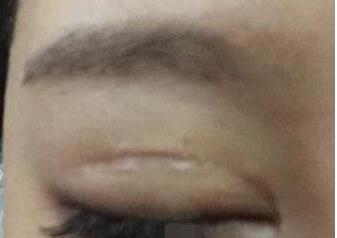做完双眼皮手术的一个半月了,整个人都显得萌萌哒