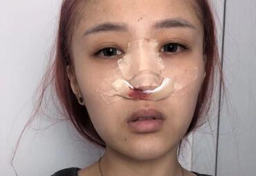 距离隆鼻手术已经两个多月过去了,收获满满