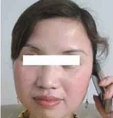 增强肌肤光滑首选彩光嫩肤
