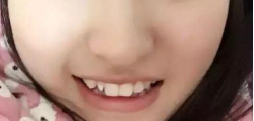是不是小清新 牙齿畸形矫正让我的笑更甜美了