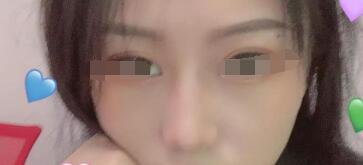做完隆鼻已经有半个月的时间了,鼻形特别的立体