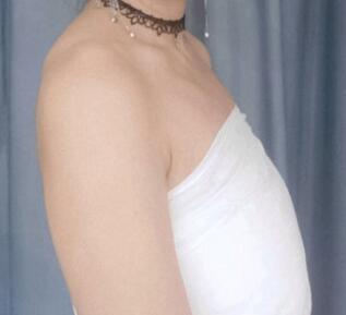 隆胸案例:女人啊,难道就不能活的洒脱点吗