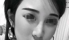 假体隆鼻术后两个月,五官的立体感马上就有了