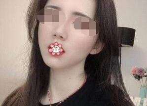 远离面部干凹 自体脂肪全脸填充让你做回少女