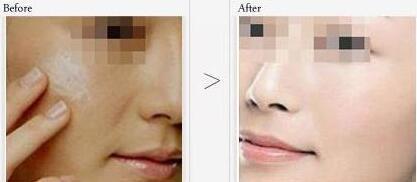 改善肤质从彩光嫩肤做起