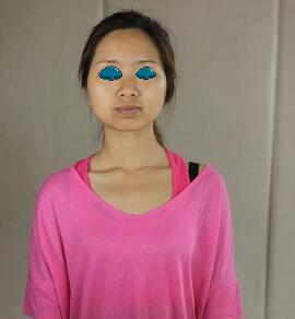 光子嫩肤术后14天做个完美的女人