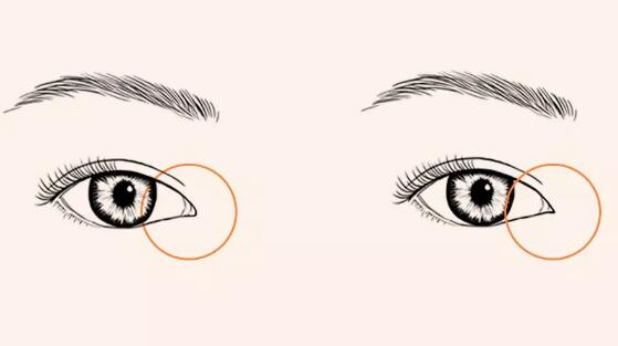 关于开内眼角的解析