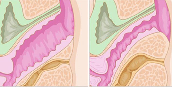 激光紧缩阴道手术百科