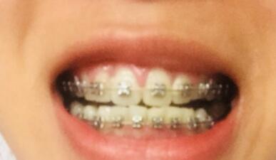 牙齿矫正已经小半年,牙齿整齐像一条心