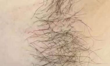 激光脱毛整整半年过去了,腿毛没有长出来