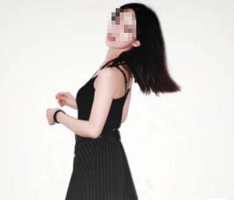 腰腹部吸脂三个多月,穿裙子也能看见小蛮腰