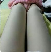 年轻且运动感强 吸脂瘦大腿让我轻松自在