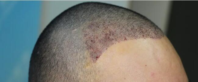 植发手术后没时间去医院清理血痂怎么办