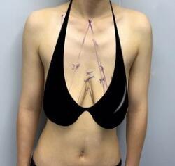 乳房下垂矫正术后三个月一点疤痕都没有