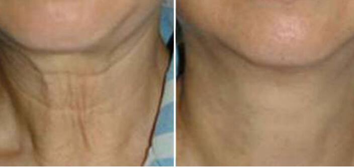 嗨体祛颈纹手术百科