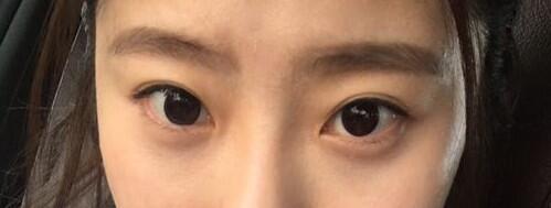 手术祛眼袋一个月左右,已经不用遮眼袋了