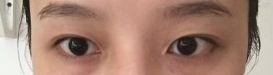 内双的人去割双眼皮半年了,眼睛就很适合自己