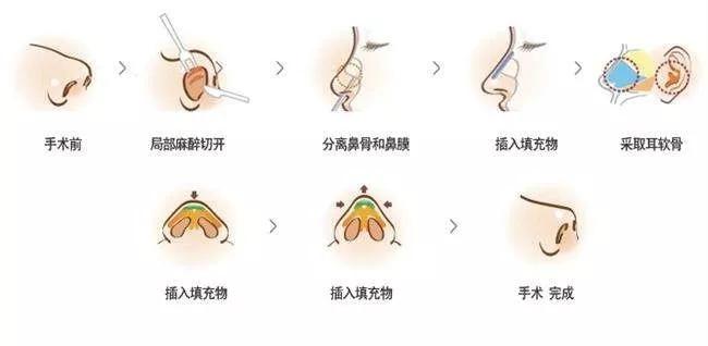 【整形精品】女生们想知道耳软骨隆鼻后 还会再长的答案在这里