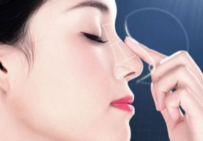 假体隆鼻手术效果好不好?