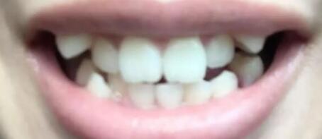 牙齿矫正6个月后跟之前就是天壤之别