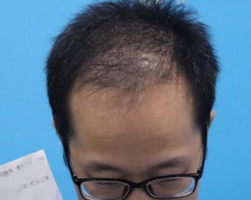 植发术后三个月,整个人也年轻很多
