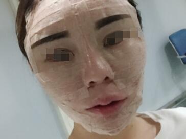 面部脂肪填充手术后第53天,填充使我的皮肤变的又白又嫩