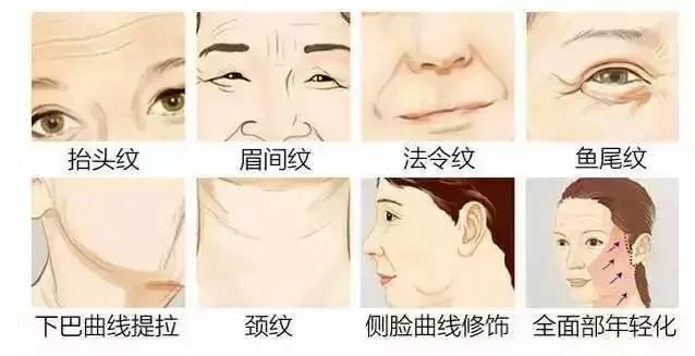 【整形精品】面部提升给我一种惊喜的感觉