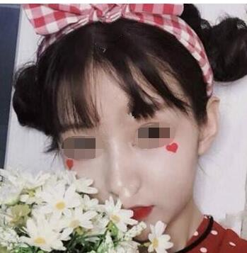广州市荔湾区人民医院做激光祛斑真人案例 附医生介绍