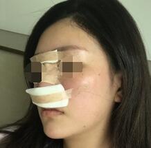 广州粤秀整形外科医院做仿生骨雕美鼻真人案例 附医生介绍
