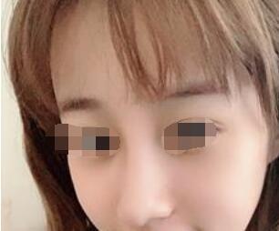 广州粤秀整形外科医院做肋骨隆鼻口碑好 附肋骨隆鼻真人案例