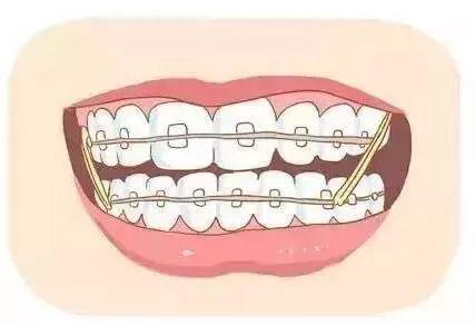 已经成年了还能不能做牙齿矫正