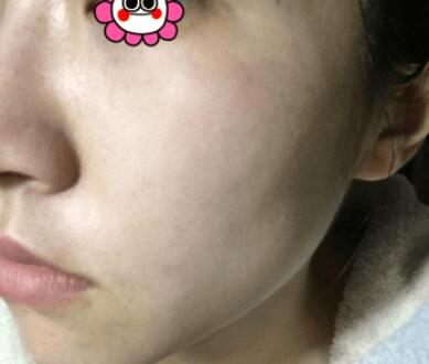 蜂巢皮秒祛雀斑让我也体会到了不一斑的颜值