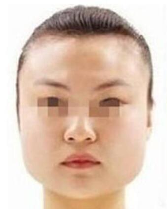 下颌角整形术后四个月拥有梦寐以求的小V脸