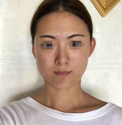 【真案例】全脸填充额头+太阳穴+苹果肌+脸颊术后效果及感受分享