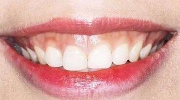 肉毒素除了瘦脸、除皱,居然还能去露龈笑