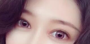 姑娘做的是全切双眼皮+开内眼角+提肌+翘睫案例
