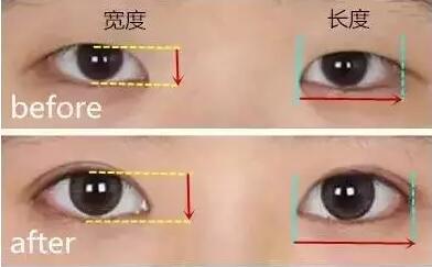 选择双眼皮宽度的时候,究竟多宽更美