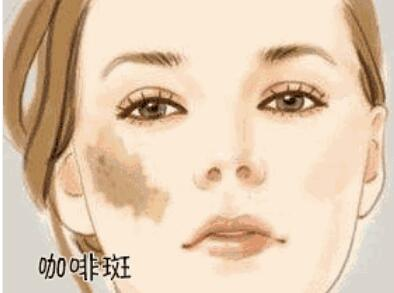 摘下口罩的小姐姐美得好像白月光,跟祛斑前相比,真是换了一张