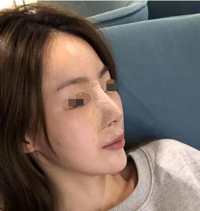 假体隆鼻让我从普通女生到气质女神的完美蜕变