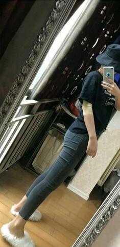 广州壹加壹美容医院做小腿吸脂口碑好 附小腿吸脂真人案例