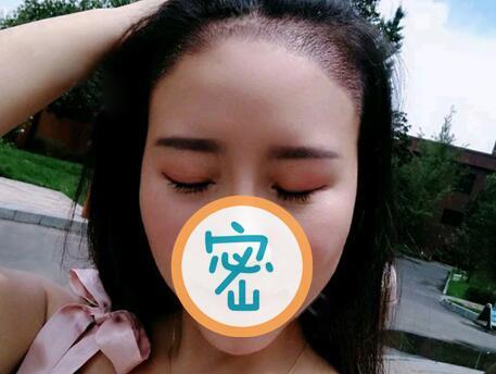 发际线种植让我的刘海美美滴