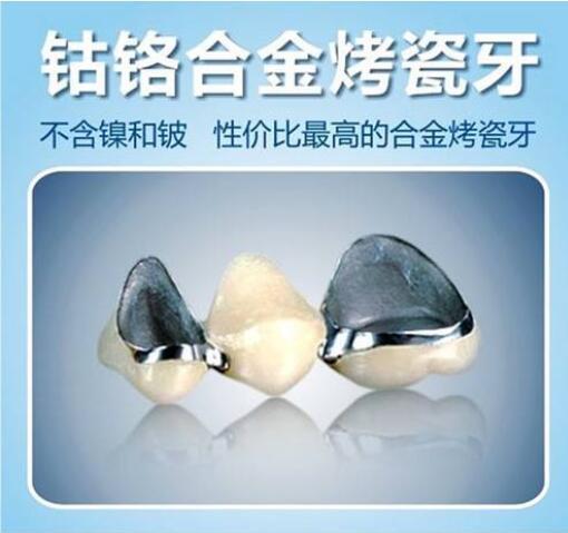 种类太多,来讲讲钴铬合金烤瓷牙的优缺点