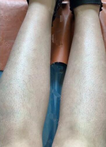 激光小腿脱毛让我在夏季不做猕猴桃